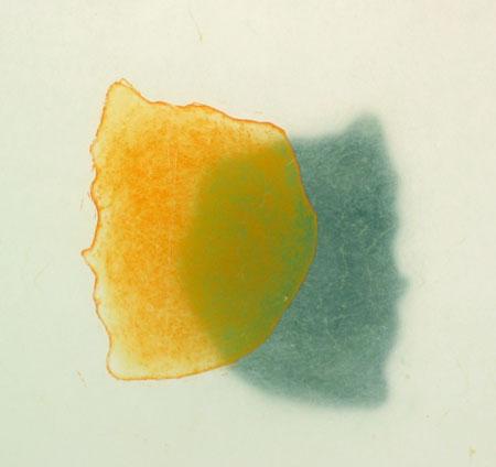 Siamilaiset kaksoset, 2005